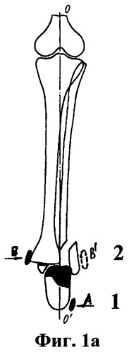 Способ фиксации переломов в повязках, изготовленных из полимерных бинтов различной жесткости
