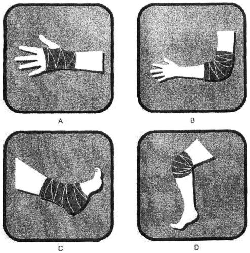 Компрессионный бандаж, способ его изготовления, матрица и способ обработки тела