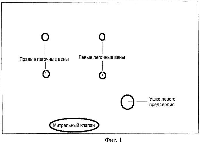 Способ контроля результатов редукции полости левого предсердия