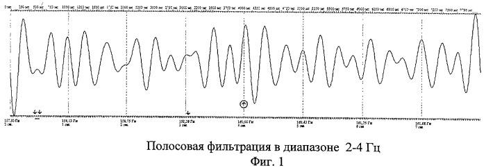 Способ определения синхронизации и десинхронизации биоэлектрической активности мозга