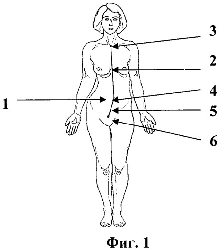 Способ определения смещения беременной матки при сколиозе