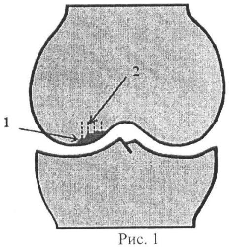 Способ выполнения субхондральной спицевой туннелизации бедренной кости при хондромаляции суставного хряща