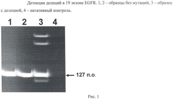 Молекулярно-генетический способ определения чувствительности опухоли у пациентов с раком легкого к терапии гефитинибом
