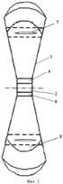 Инерционный механизм