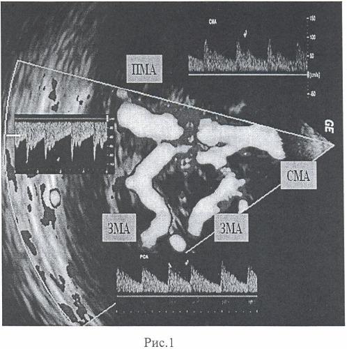 Способ визуализации сосудов головного мозга