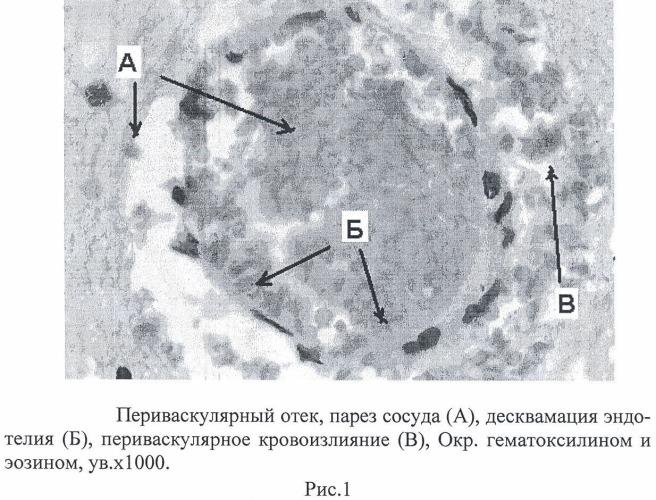 Способ оценки церебральных микроваскулярных нарушений при бактериальных гнойных менингитах