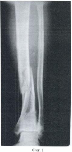 Способ оптимизации условий сращения переломов костей конечностей и их последствий в условиях их обездвиживания