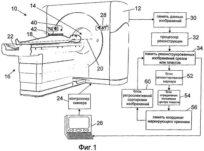 Ретроспективная сортировка 4d ст по фазам дыхания на основании геометрического анализа опорных точек формирования изображения