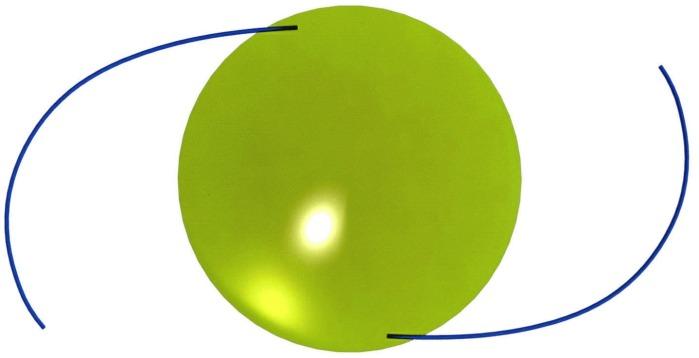 Способ имплантации и центрации трехчастной s-образной интраокулярной линзы в капсульный мешок при эктопии хрусталика (варианты)