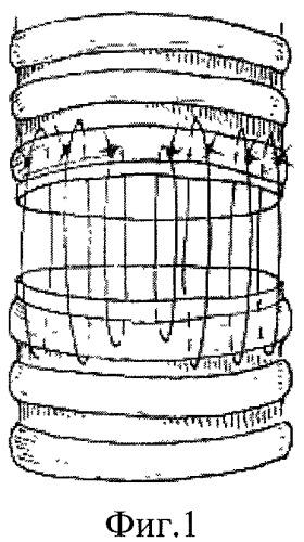 Способ формирования трахеотрахеального анастомоза при циркулярных разрезах трахеи