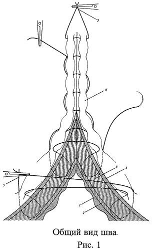 Способ наложения однорядного кишечного шва е.с. петрова