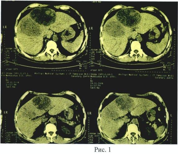 Способ хирургического лечения опухолей печени центральной локализации с инвазией в артерии ворот печени и неравномерном поражении их оболочек, осложненных механической желтухой