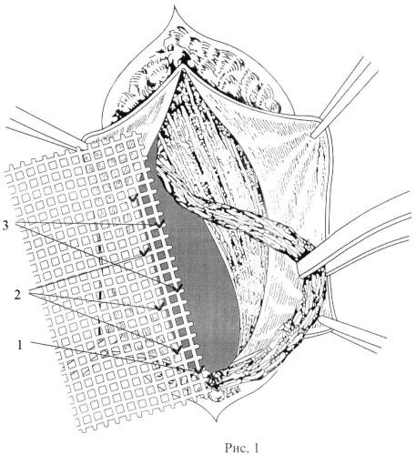Способ лечения комбинированных паховых грыж