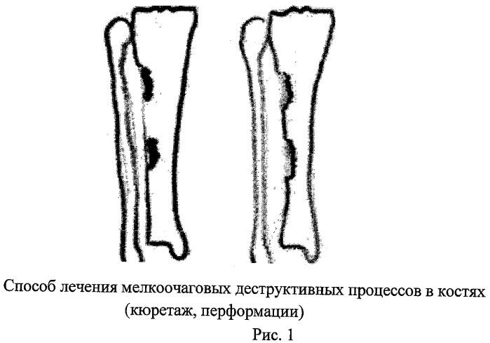 Способ лечения кистозной деструкции кости