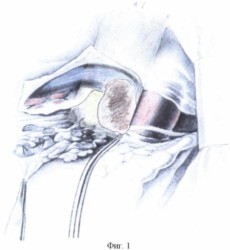 Способ комбинированной пневмонэктомии слева у больных раком легкого