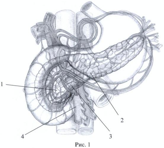 Способ хирургического лечения хронического осложненного панкреатита
