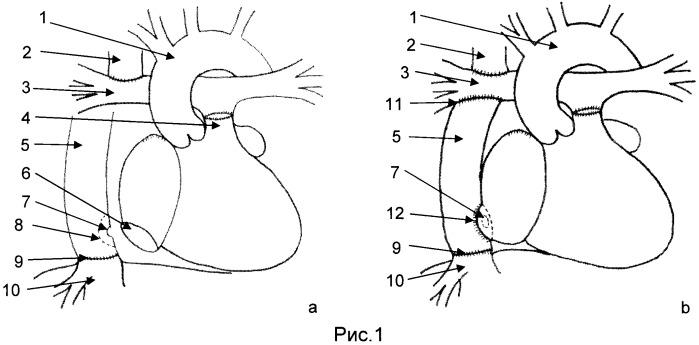 Способ гемодинамической коррекции врожденных пороков сердца с функционально единственным желудочком сердца