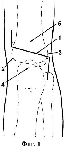 Способ заднего доступа к дистальному отделу плечевой кости у детей