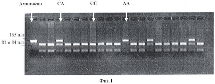 Способ генотипирования полиморфизма rs17522918 гена пероксиредоксина-1 у человека