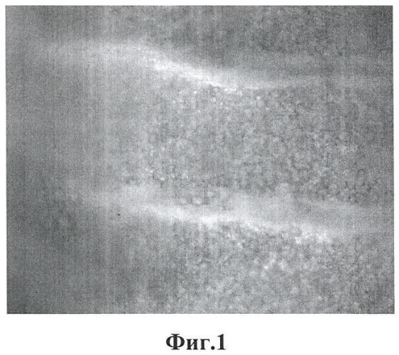 Способ получения трахеобронхиального биоимпланта