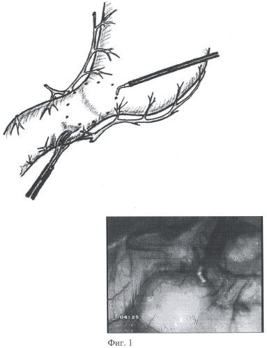 Способ лапароскопической коррекции дуоденогастрального рефлюкса