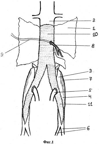 Способ профилактики острого нарушения кровообращения толстой кишки в бассейне нижней брыжеечной артерии после реконструкции инфраренального отдела брюшной аорты по поводу аневризмы