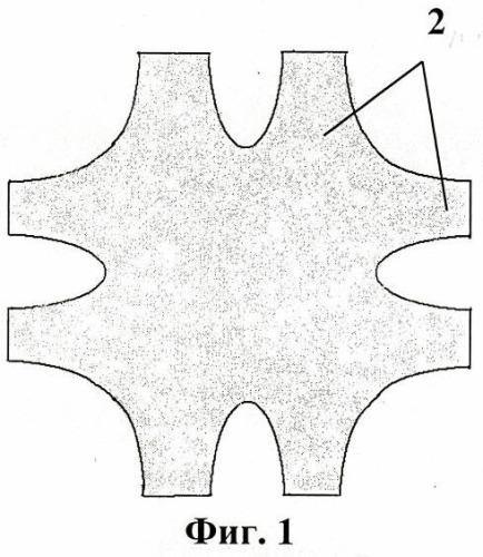 Способ пластики при больших послеоперационных вентральных грыжах