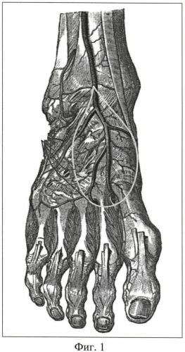 Способ хирургического лечения хронического остеомиелита таранной кости с дефектом покровных тканей стопы