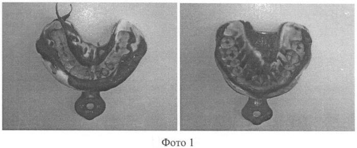 Способ снятия оттисков с использованием индивидуальной ложки при протезировании ортопедическими конструкциями