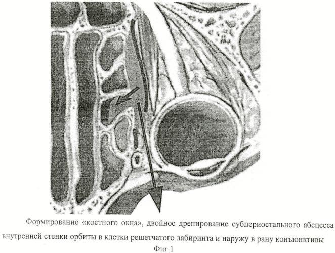 Способ хирургического лечения субпериостального абсцесса внутренней стенки орбиты