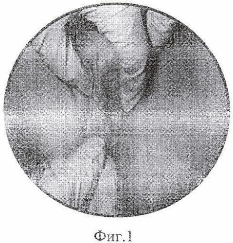 Способ диагностики неспецифических вульвовагинитов у девочек