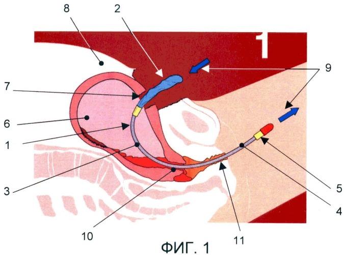 Немедикаментозный способ профилактики гнойно-септических и геморрагических осложнений при кесаревом сечении