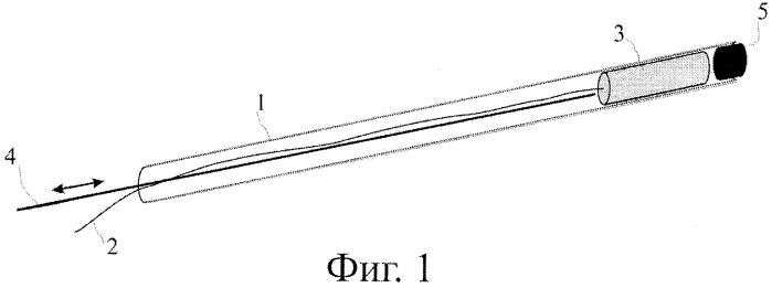 Устройство предупреждения миграции камня и его фрагментов в процессе контактной литотрипсии
