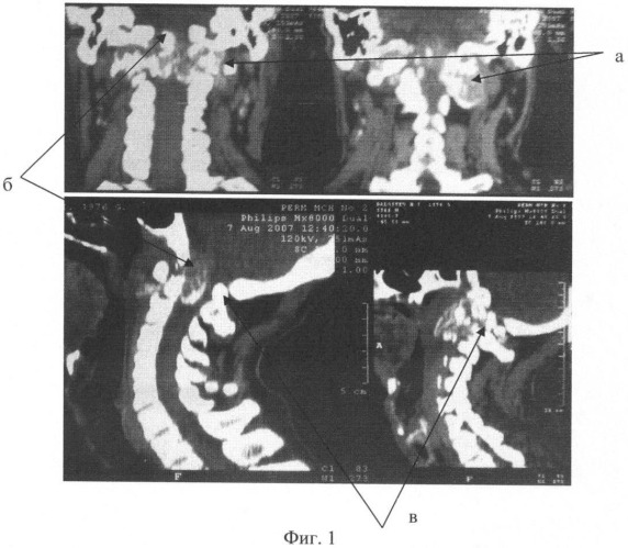 Способ хирургического лечения осложненных неврологическими нарушениями воспалительных заболеваний кранио-вертебральной области