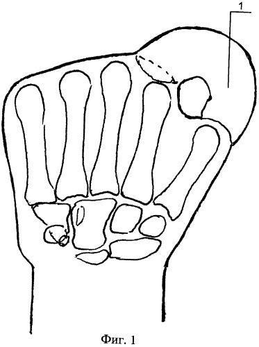 Способ формирования пальца кисти