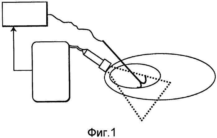 Основанная на анализе изображений обратная связь для регулирования мощности для формирования оптимального ультразвукового изображения радиочастотного удаления тканей