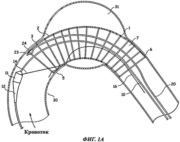 Система и способ позиционирования стент-графта