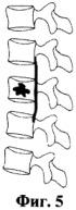 Способ вертебропластики при переломах тел позвонков