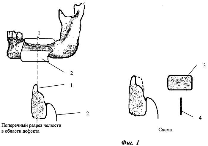 Способ костной пластики при атрофии альвеолярного отростка челюстей (варианты)