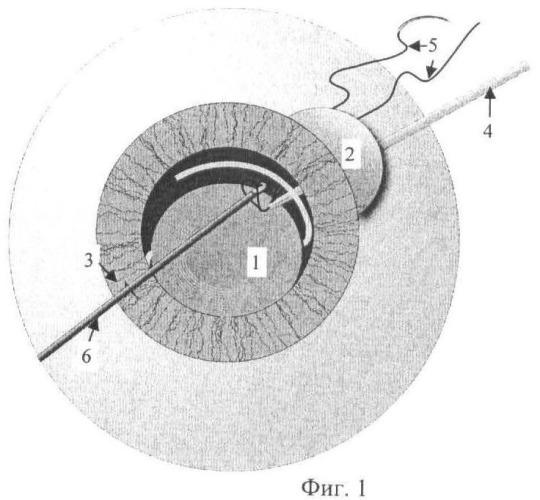 Способ устранения дислокации интраокулярной линзы