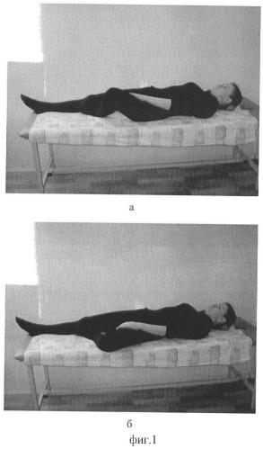 Способ реабилитации пациентов с коксартрозом
