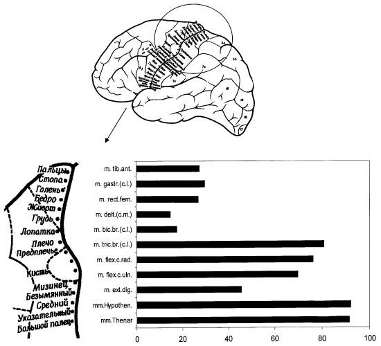Способ оценки функциональной недостаточности моторных зон коры головного мозга при поражении центрального мотонейрона