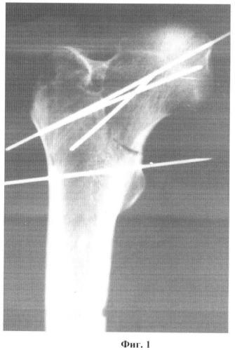 Способ диагностики степени ротационного смещения отломков проксимального отдела бедренной кости