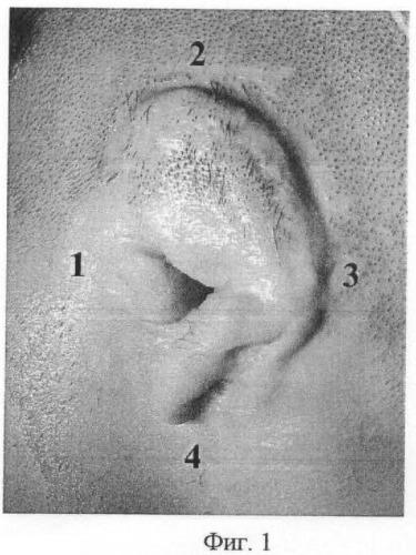 Способ определения кожной микроциркуляции в околоушной области у больных с врожденными пороками уха и приобретенными деформациями ушной раковины