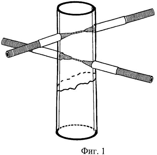 Способ фиксации отломка или отломков кости