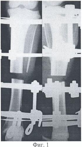 Способ экспериментального моделирования замедленного дистракционного остеогенеза при укорочении костей конечностей