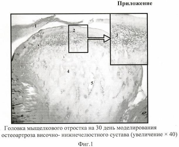 Способ моделирования остеоартроза височно-нижнечелюстного сустава