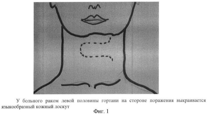 Способ реконструктивной операции на гортани