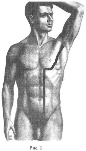 Способ оперативного доступа ко всей нисходящей аорте