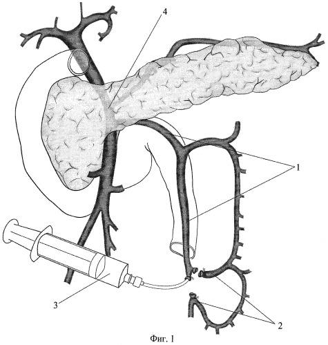 Способ выбора тактики хирургического лечения хронического панкреатита, осложненного тромбозом воротной вены